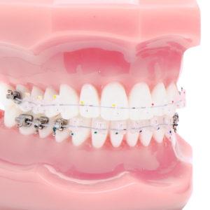 ortodoncia estética autoligado estético