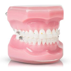 ortodoncia estética bracket cerámico